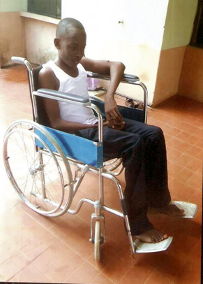 Anguish of UNIBEN student battling rare bone disease